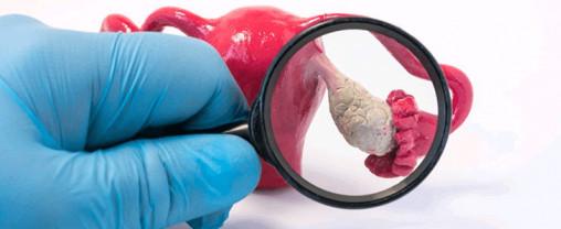 سندرم تخمدان پلی کیستیک